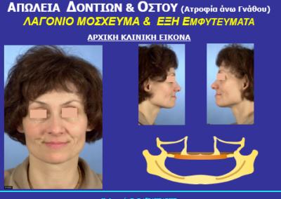 emfytevma.gr - Πριν